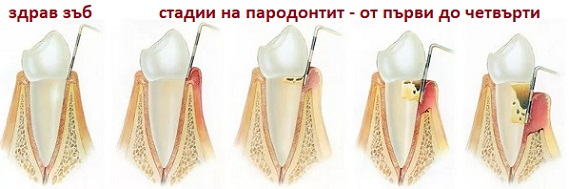 parodontit-01