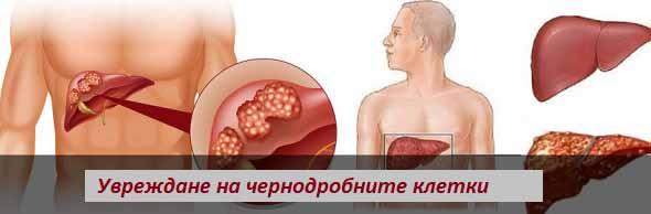 chernodrobna-nedostatuchnost-02