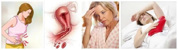 obilna-menstruaciya-04
